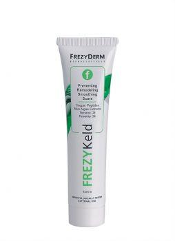 Frezyderm Frezykeld Cream Απαλή Kρέμα Αντιμετώπισης Ουλών 40ml